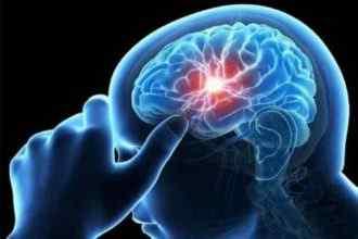 Brain Tuberculomas Causes Of Brain TB Symptoms Of Brain TB